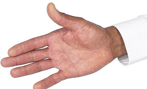 CDC: arthritis more  adversely affects blacks